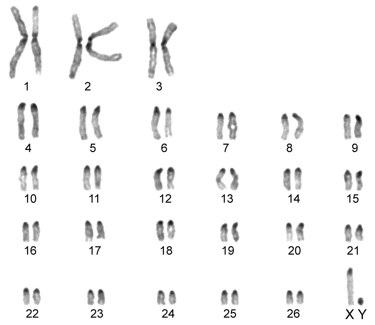 Banded karyotype of th...